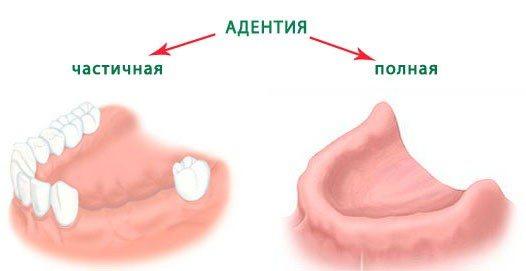 Симптоми адентії