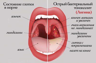 Симптоми ангіні