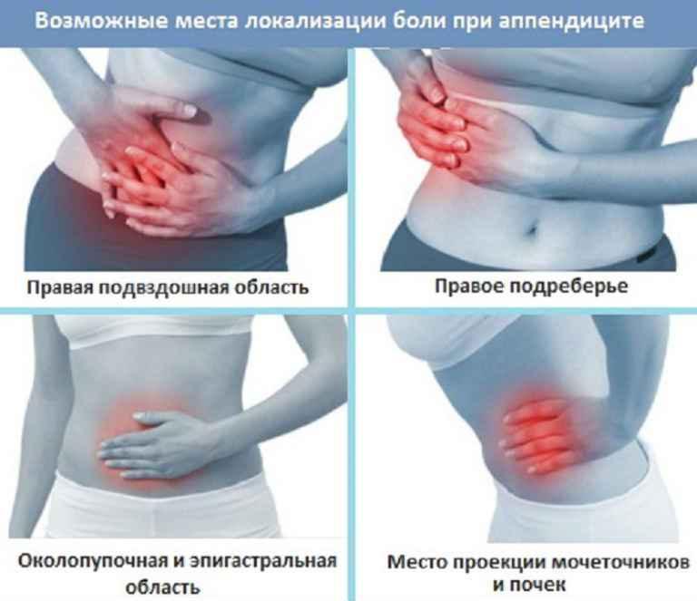 Симптоми апендициту у жінок, як визначити в домашніх умовах