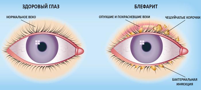 симптоми блефарити