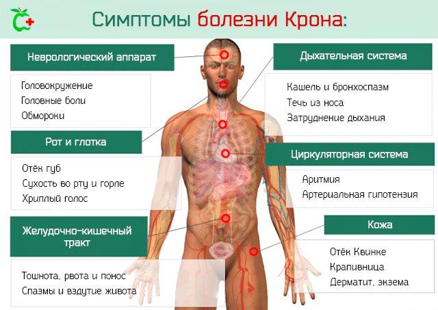Симптоми хвороби крона