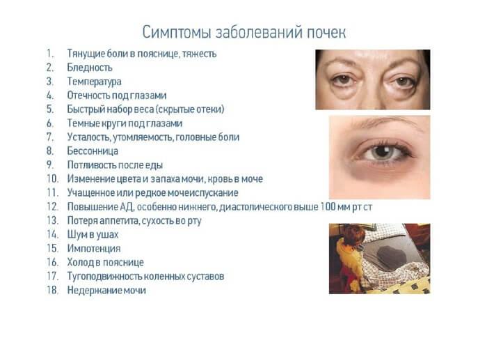 Симптоми хвороби нирок