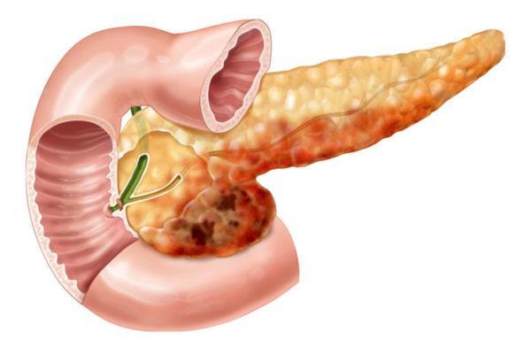 Симптоми хвороби підшлункової залози у чоловіків