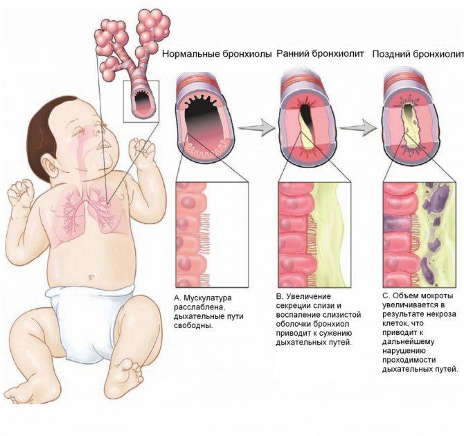 Симптоми бронхіоліту