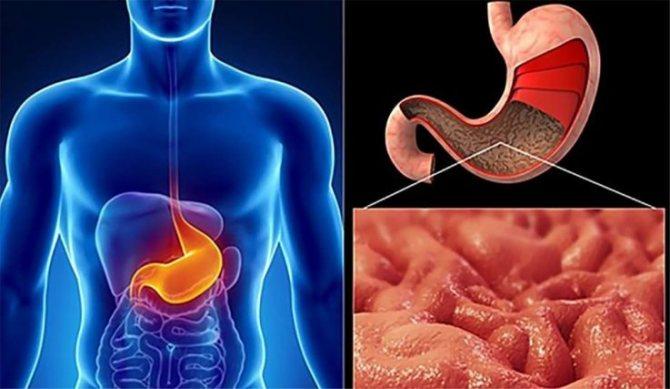 Симптоми цитомегаловірусної інфекції
