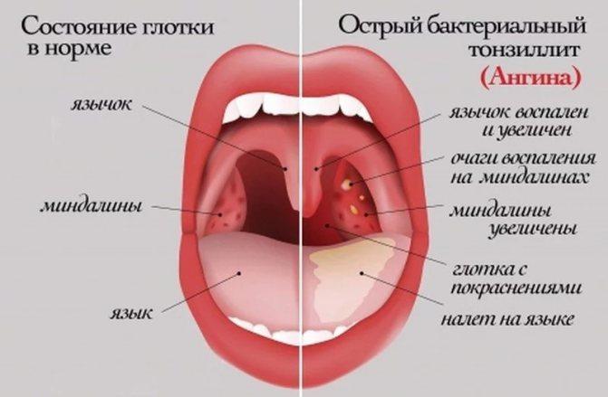 Симптоми дитячої ангіні