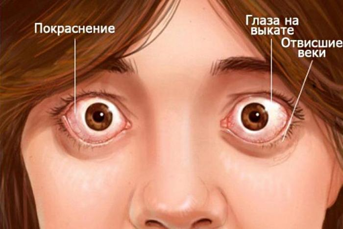 симптоми екзофтальму