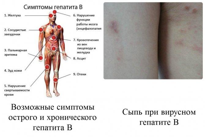 симптоми гепатиту в