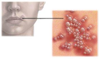 Симптоми герпесу 4 типи