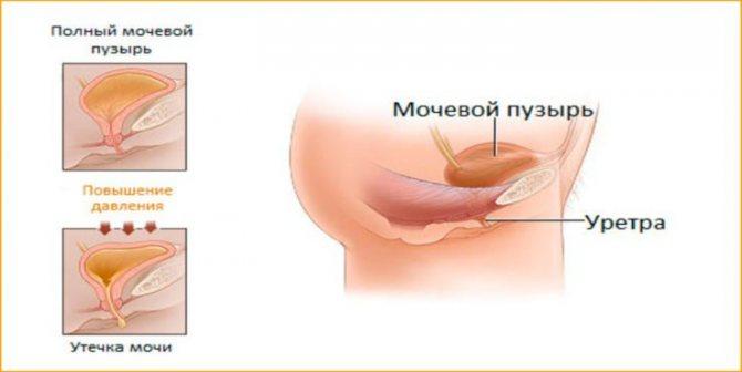 Симптоми гипореактивность форми