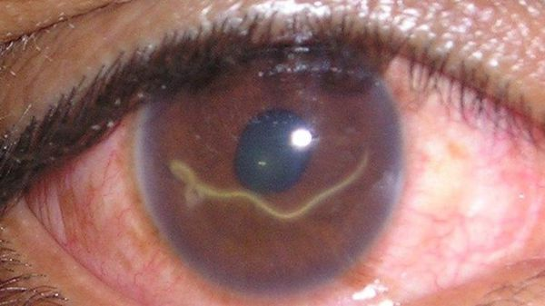 Симптоми очного токсокарозу