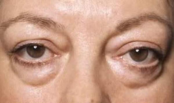 Симптоми і механізм розвитку набряків ниркового походження