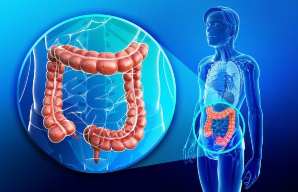 Симптоми і методи лікування захворювань поперечно-ободової кишки