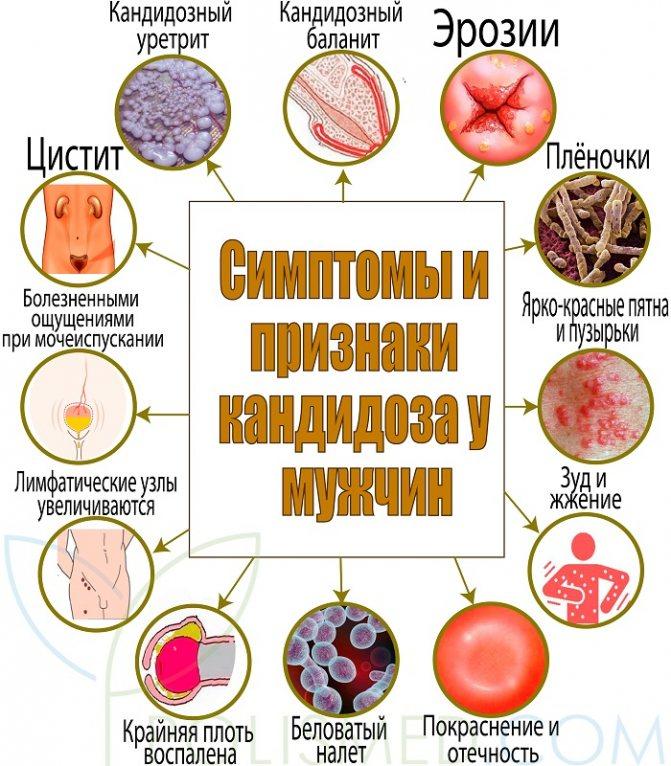 Симптоми і ознаки кандидозу