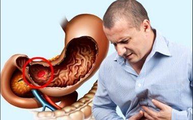 Симптоми і ознаки внутрішньої кровотечі