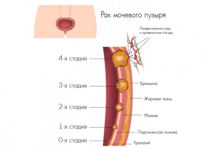 Симптоми і стадії раку сечового міхура у жінок