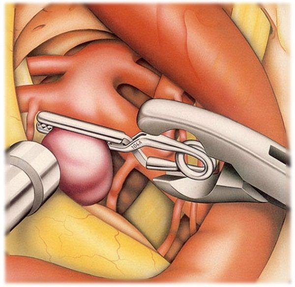 Симптоми інсульту у жінок после 30, 40, 50, 60 років.  Перша допомога, реабілітація, лікування