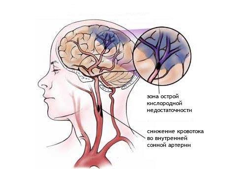 Симптоми ішемії