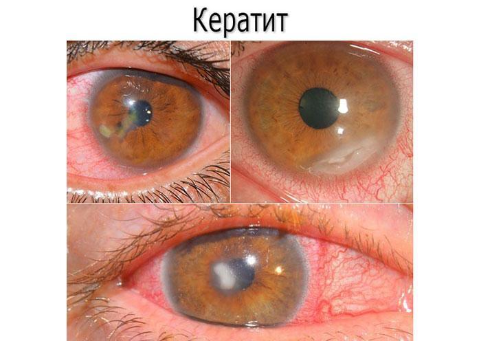 симптоми кератиту