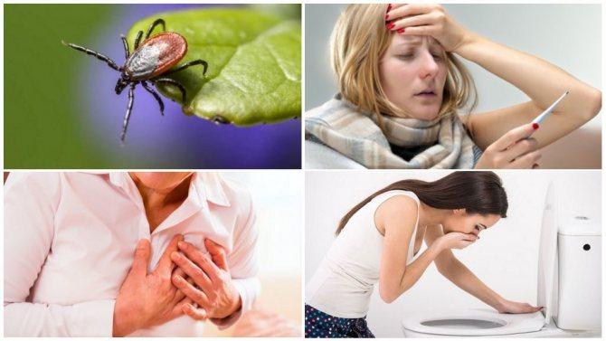 Симптоми кліщового енцефаліту