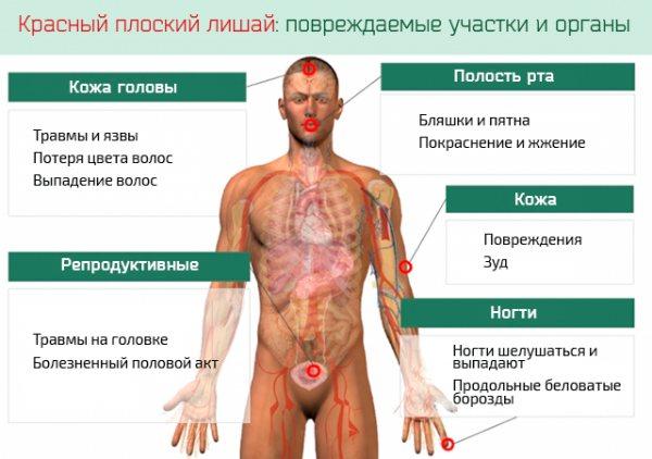 Симптоми червоного плоского позбавляючі