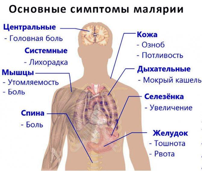симптоми малярії