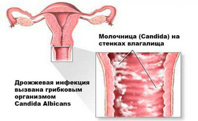 симптоми молочниці
