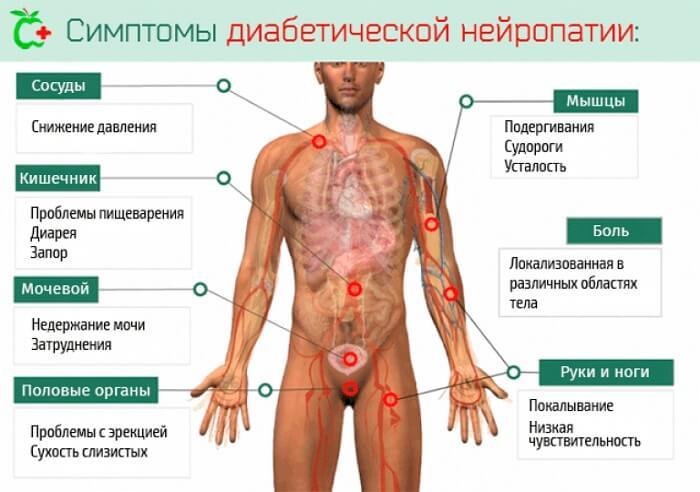 симптоми нейропатії