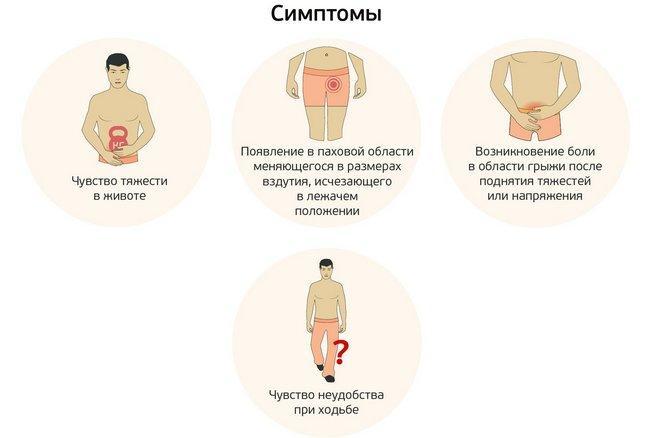 Симптоми пахової грижі у чоловіків