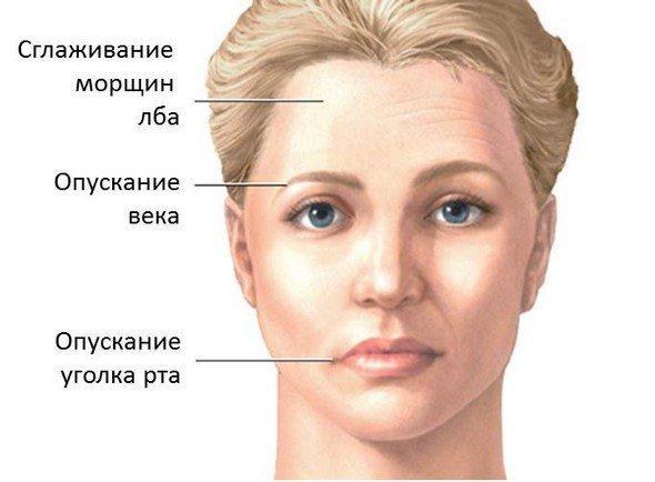 Симптоми парезу лицьового нерва