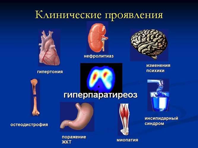 Симптоми надлишку вітаміну Д у дорослих і дітей. Що робити, лікування