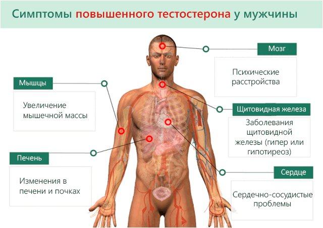 Симптоми підвищеного тестостерону у чоловіків