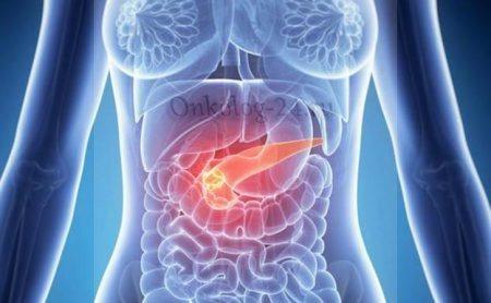 Симптоми раку підшлункової залози у жінок