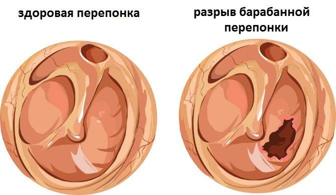 симптоми розриву барабанної перетинки
