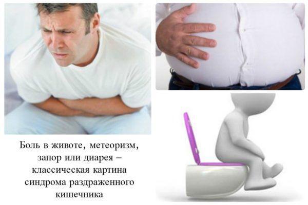 Симптоми синдрому роздратованого кишечника