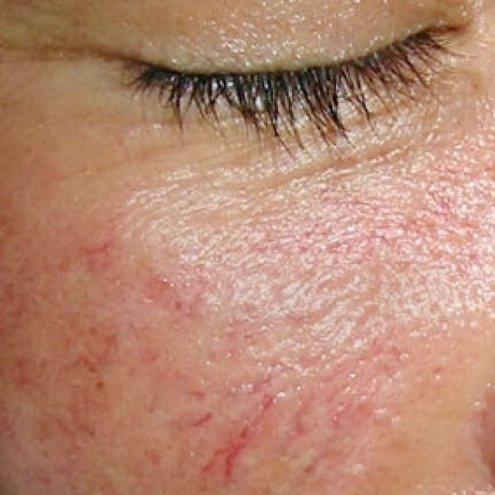 Симптоми судинних зірочок