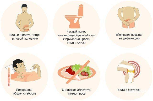 Симптоми спастичного коліту