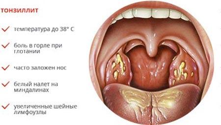 симптоми тонзиліту