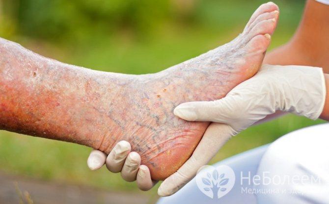 Симптоми тромбофлебіту ніжніх кінцівок