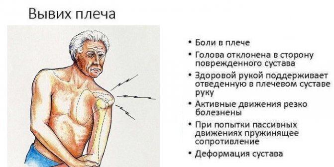 Симптоми вивиху плеча