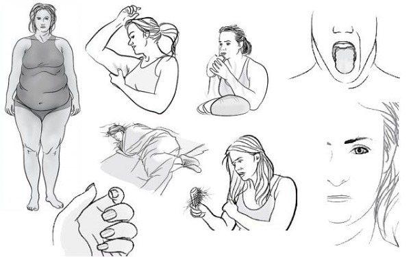 Симптоми захворювання щитовидної залози у жінок, перші ознаки, лікування медикаментами і народними засобами