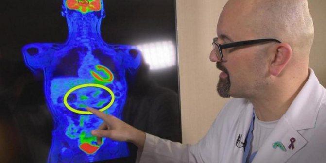 симтомов раку поджелужочной залози