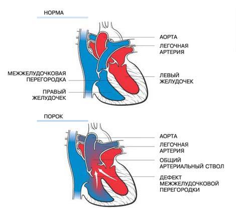 Система з серця і судин дитини закладається в перші два місяці внутрішньоутробного розвитку. Вплив на організм жінки несприятливих факторів в цей період найчастіше і призводить до аномалій в структурах серця і коронарних судин.