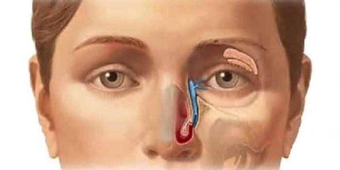Система відведення слізної рідини з ока