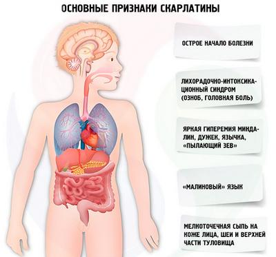 Скарлатина - можлива причина важкого дихання