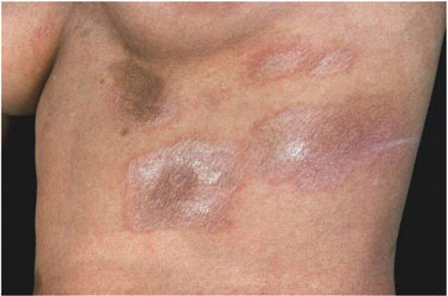 Склеродермия: фото плям