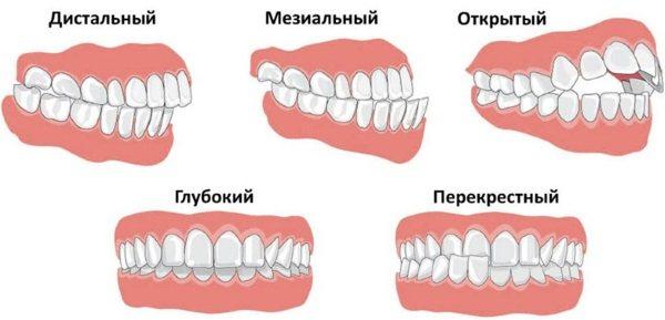 Скрегіт зубами уві сні у дорослих. Причини, що робити, як позбутися