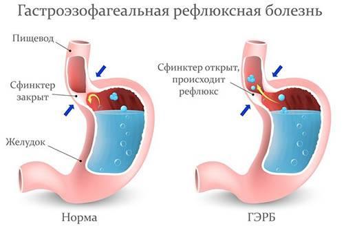 Зліва норм, а праворуч гастроезофагеальна рефлюксна хвороба
