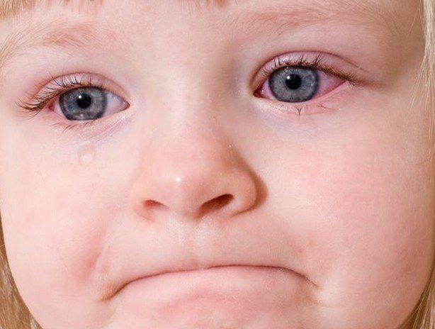 сльозотеча