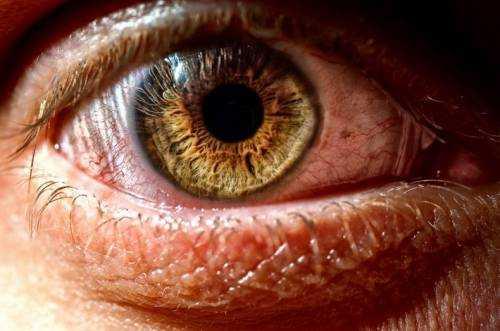 слизова очі збирається гармошкою